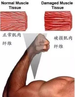 如何缓解健身后的肌肉酸痛? 健身穿搭 第3张